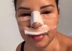 Ex-BBB Ariadna Arantes sobre rinoplastia: 'Tem que ter força na peruca'