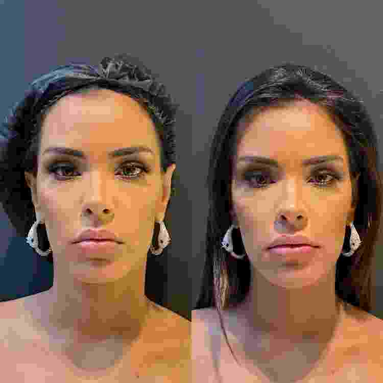 Ivy Moraes antes e depois de procedimentos estéticos - Divulgação - Divulgação