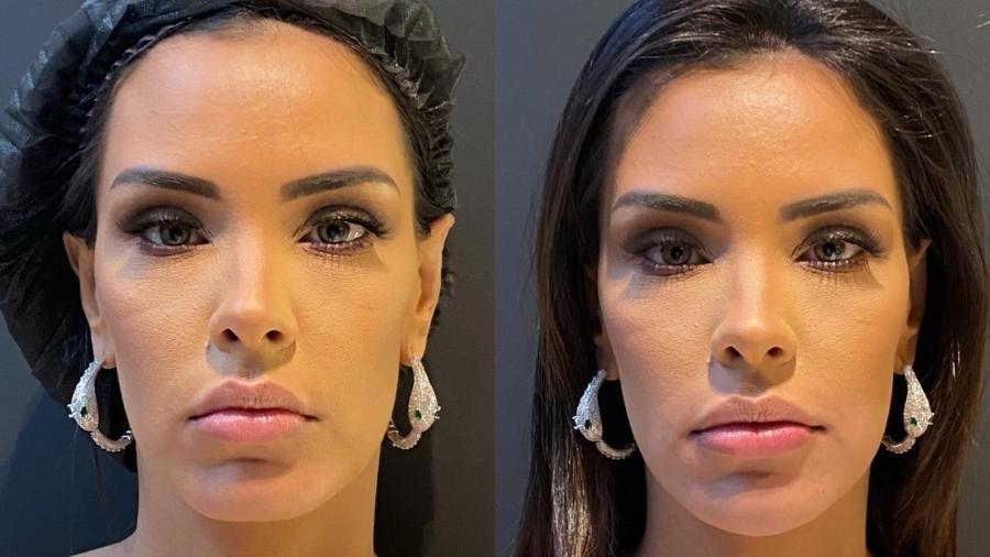 Ivy Moraes mostrou resultado após procedimentos - Divulgação