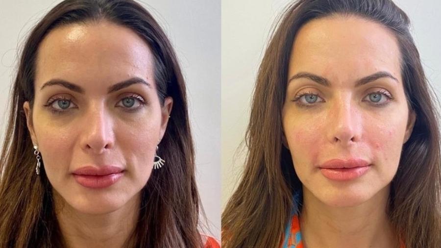 Carla Prata mostra antes e depois de preenchimento facial - Reprodução/Instagram