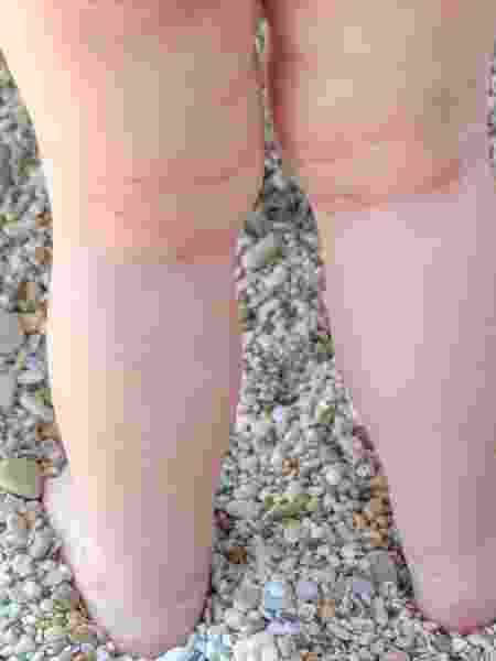 Dermatite atópica é uma doença crônica que pode ser ocasionada por ácaros - iStock
