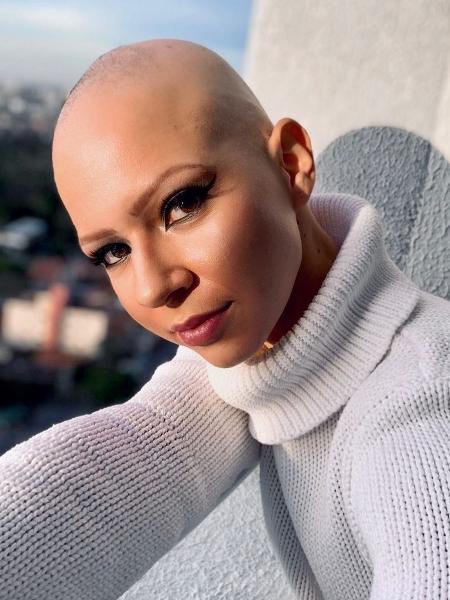 Yasmin escondeu a queda dos fios por anos. Hoje usa as redes sociais para incetivar outras mulheres com alopecia a se aceitar - Acervo pessoal