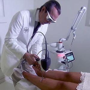 A depilação robótica é feita com o aparelho Fotona e uma ponteira automatizada