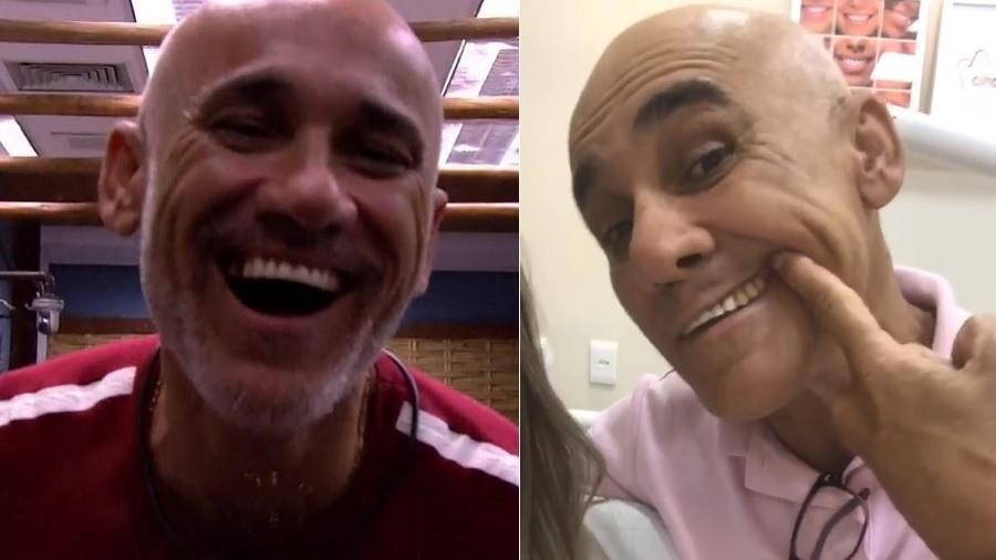 """Ayrton Lima conserta sorriso após perder dente no """"BBB18"""" - Montagem/Reprodução/Instagram"""