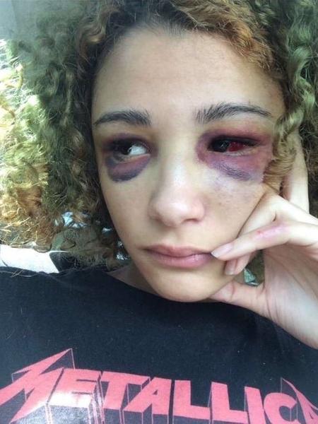 A ex-namorada de XXXTentacion divulgou algumas imagens da agressão do rapper - Reprodução