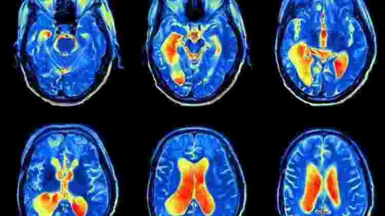 A perda de líquido cefalorraquideano afeta a cinco a cada 100.000 pessoas por ano - iStock - iStock
