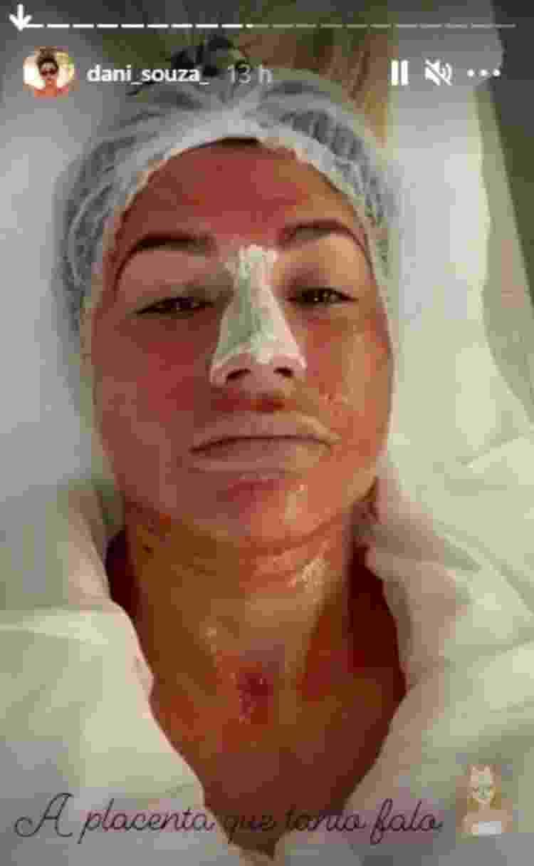 Dani Souza faz tratamento facial com placenta - Reprodução/Instagram@dani_souza_ - Reprodução/Instagram@dani_souza_