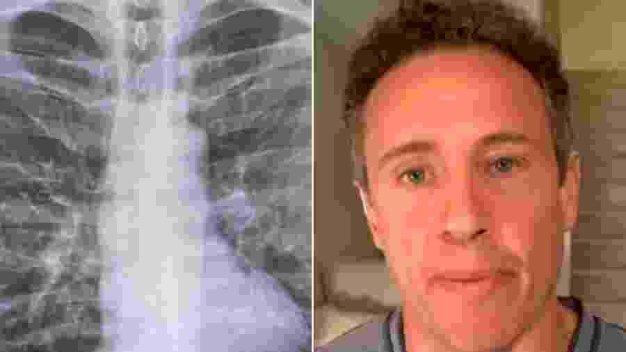 Chris Cuomo, âncora da CNN, e o raio-x que mostra a mancha nos pulmões - Reprodução