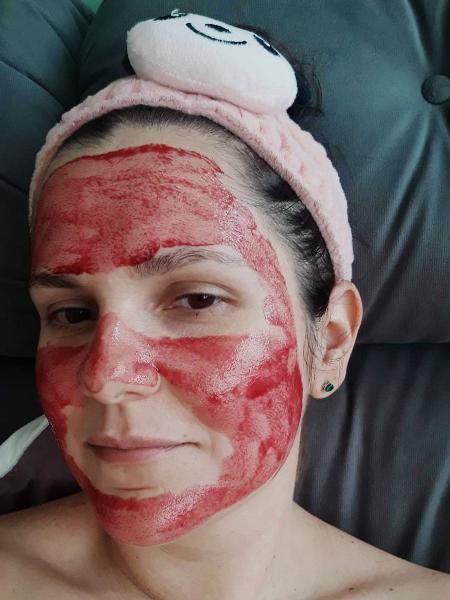 Solução de ácidos promete pele viçosa; funcionou na minha, até o dia que quase me queimou - Camila Brandalise/UOL