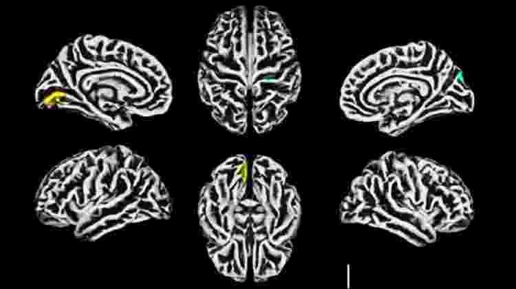 cérebros, unicamp - Unicamp - Unicamp