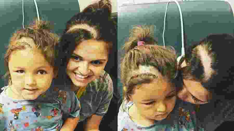 Jamie, mãe de Faith, raspou parte do cabelo ao ver filha triste com cicatriz pós-operatória - Reprodução/Facebook/LoveWhatMatters