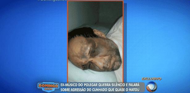 Ricardo Costa contou detalhes da agressão que sofreu do cunhado no início do mês - Reprodução/TV Record