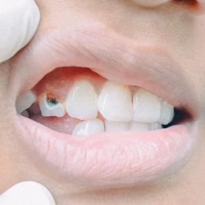 fd16d64f3 Não cuidar dos seus dentes pode causar infarto e problemas no pulmão ...