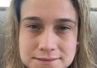 Fernanda Gentil aparece inchada após tirar os quatro sisos