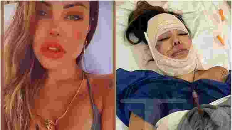 Liziane Gutierrez precisou passar por cirurgia para retirar produtos do rosto - Reprodução/Instagram/TMZ - Reprodução/Instagram/TMZ