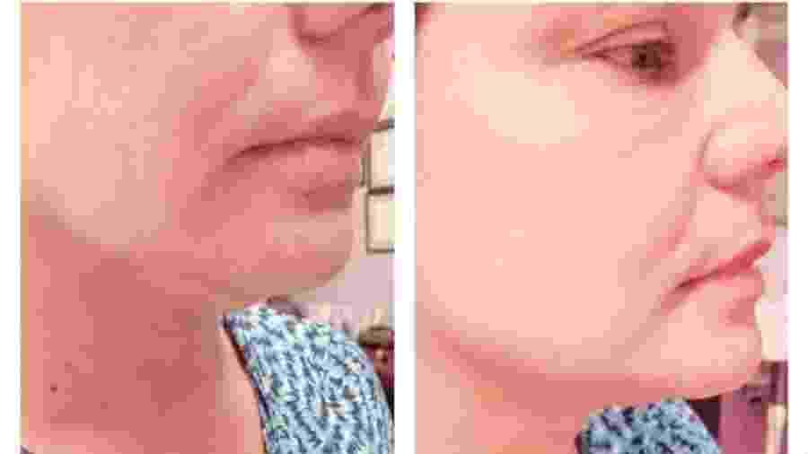 Nivea Stelmann mostra antes de depois de procedimento para eliminar a papada - Reprodução/Instagram