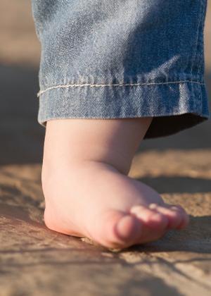 91297e764 Botas e palmilhas ortopédicas não ajudam a resolver pé chato - BOL ...