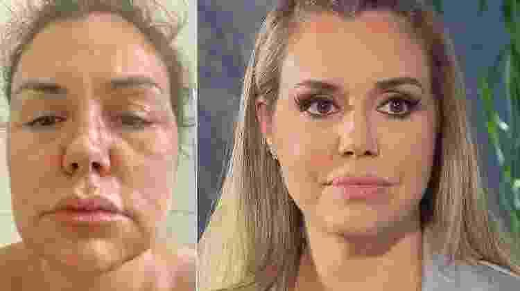 Renata Banhara, antes e depois da paralisia facial - Montagem/Divulgação/Record - Montagem/Divulgação/Record