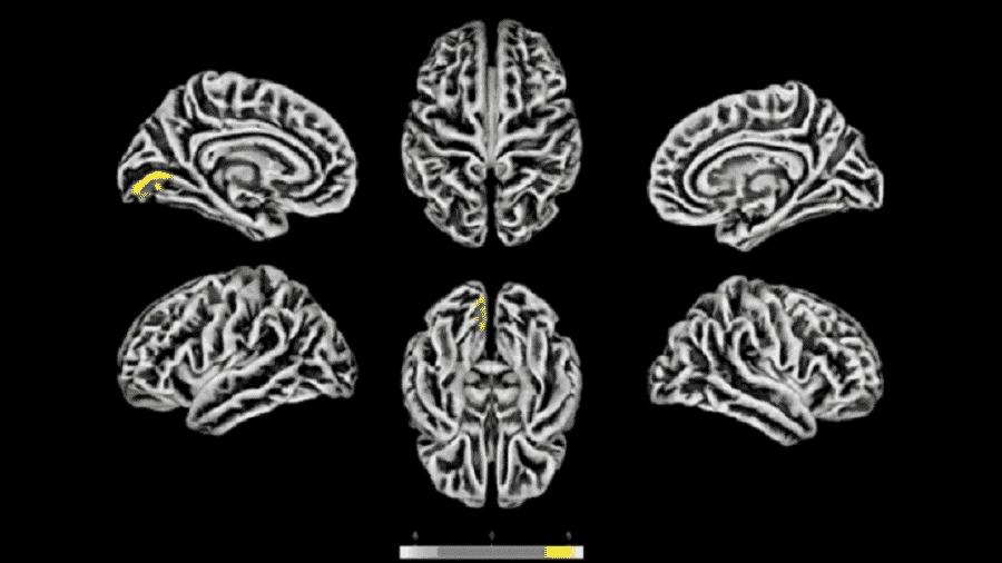 Exames de ressonância magnética feitos na Unicamp em 81 pacientes com sintomas neuropsiquiátricos pós-covid revelam alterações na estrutura do córtex cerebral. As áreas em amarelo apresentam redução na espessura cortical. As marcas azuis correspondem a áreas com espessura aumentada - Reprodução/medRxiv