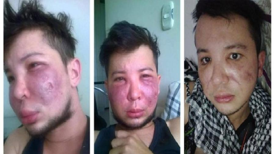 Hoje (foto da direita), Jerson Trujillo diz que reconstituiu de 50% a 60% do seu rosto, após quatro cirurgias de reparação - Jerson Trujillo
