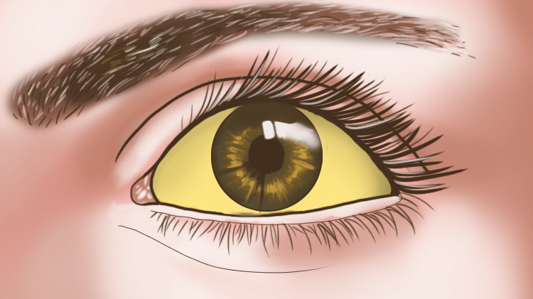 d77d479ad 8 problemas oculares e o que eles podem indicar sobre sua saúde -  10/01/2018 - UOL VivaBem