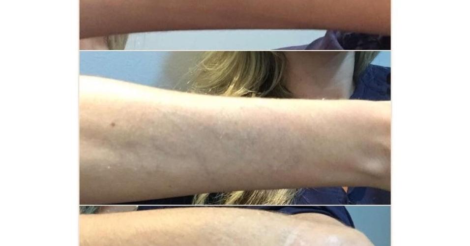 14.jan.2016 - Bárbara Evans comemorou no Instagram a remoção de suas tatuagens nos braços. Em 2013, ela foi muito criticada nas redes sociais por tatuar
