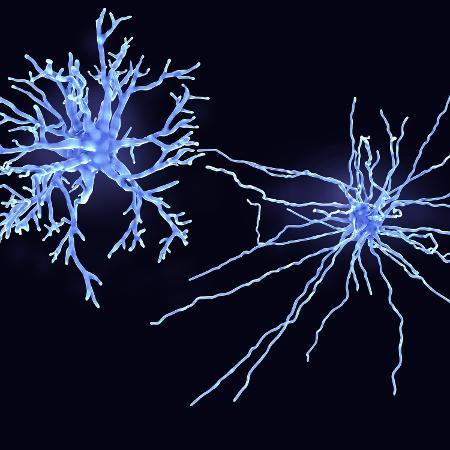 A astrogliose é uma inflamação que ocorre em células neurais chamadas de astrócitos e é comum em doenças neurodegenerativas - iStock