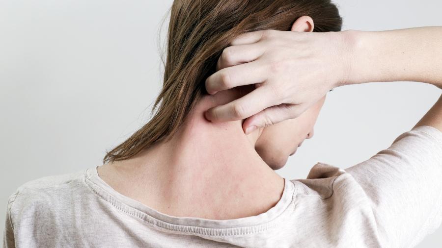 Psoríase e eczema surgem de forma parecida, provocam descamação e podem ser confundidas na hora do diagnóstico - iStock