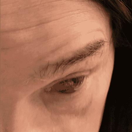 Ozzy Osbourne machuca o olho após tossir - Reprodução