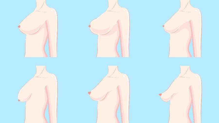 O que acontece nos seios varia para cada mulher - iStock
