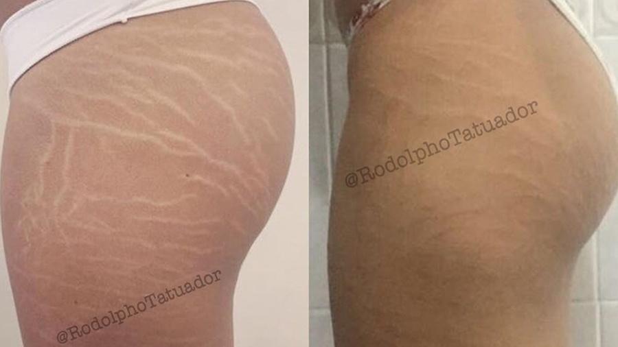 Antes e depois: no procedimento, Rodolpho Torres tatua a área das estrias com pigmento do tom da pele da cliente - Reprodução/Instagram/@RodolphoTatuador