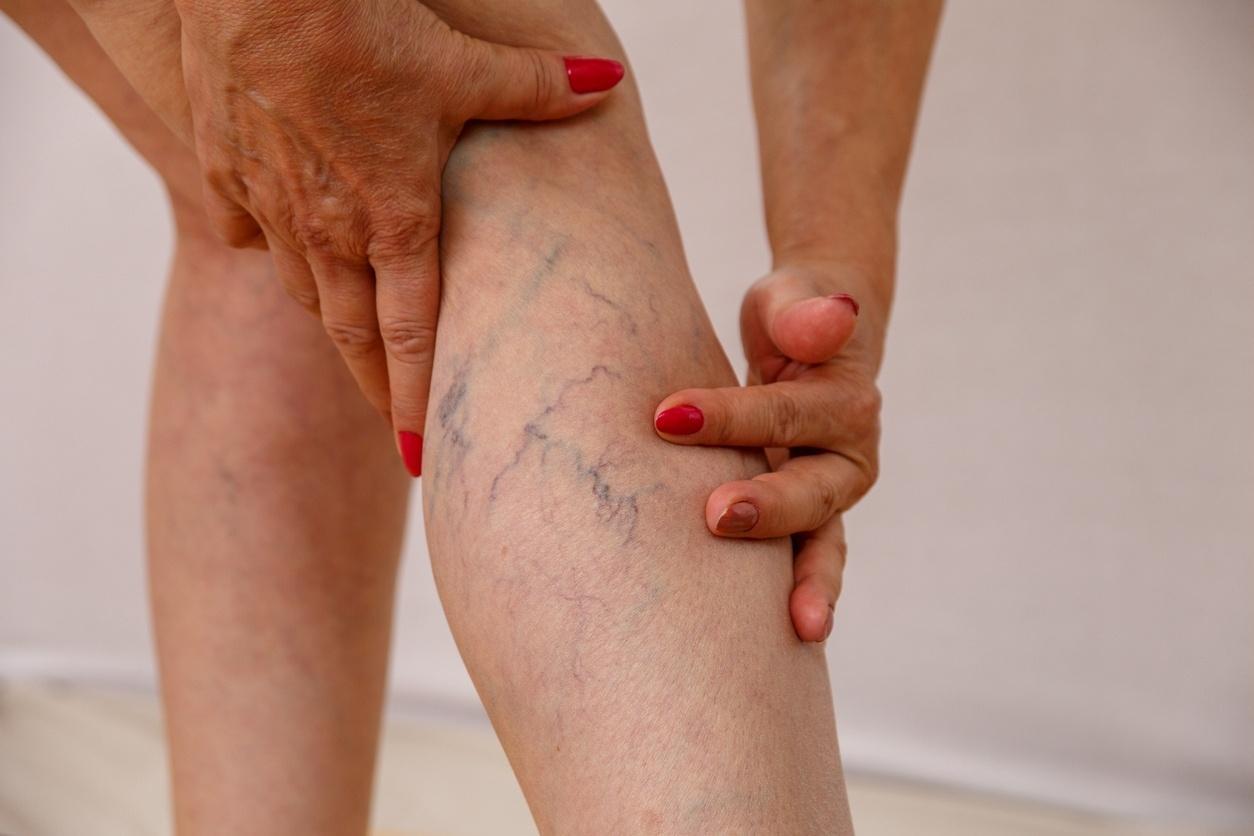 Óleos essenciais para ajudar na circulação sanguínea nas pernas