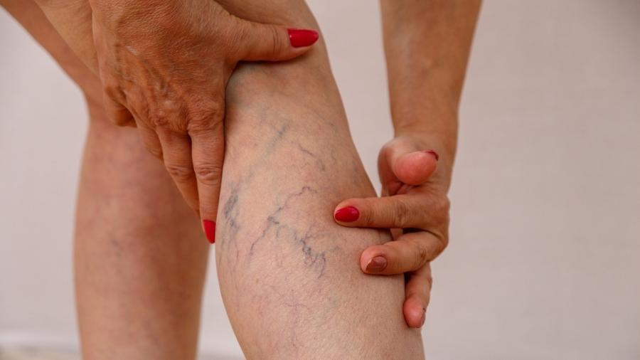 Problema vascular atinge mais mulheres que homens, mas mudanças de hábito melhoram a condição - Getty Images/iStockphoto