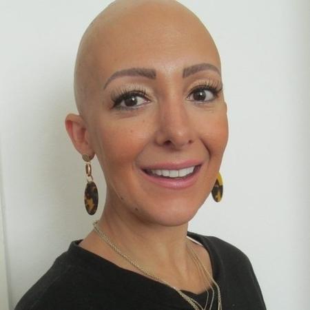 Rima Theisen assumiu a careca como forma de fortalecer sua autoestima - Reprodução/Prime Features Agency