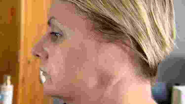 A amputação do ouvido fez Anthea Smith ficar surda de um lado e ter problemas de equilíbrio - BBC - BBC