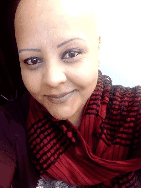 A auxiliar jurídica Juliana Fernandes tem alopecia areata - Arquivo pessoal