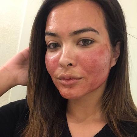 A técnica se chama PRP (plasma rico em plaquetas) e Geisy contou que foi anestesiada antes de fazer o procedimento  - Reprodução/Instagram Geisy Arruda
