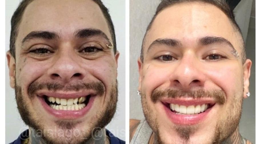 Leo Stronda mostra o antes e o depois de lentes de contato nos dentes - Reprodução/Instagram