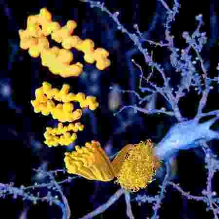 Grandes quantidades de beta-amiloide pode ser sinal do Alzheimer - iStock