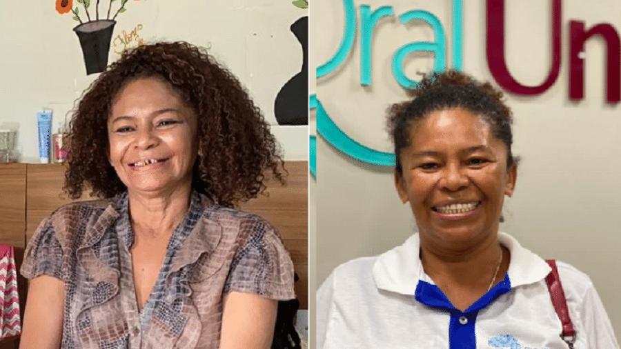 Sorriso de Maria Solange antes e depois da intervenção - Reprodução/Instagram/@parceirosbrilhantes