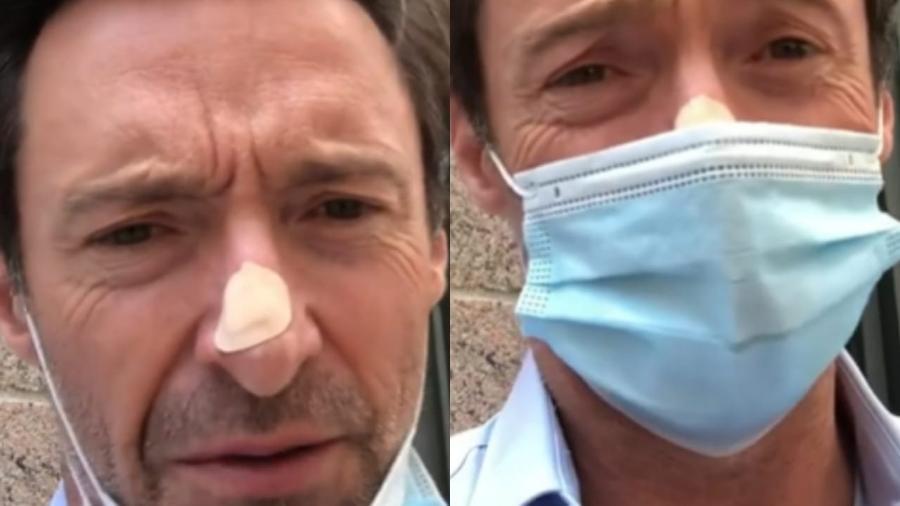Hugh Jackman conversa com seguidores após fazer biópsia no nariz - Reprodução/Instagram