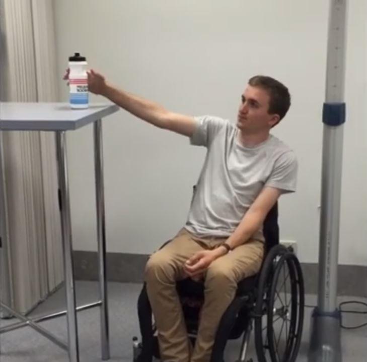 Nova cirurgia restaura movimento da mão e do braço em adultos com paralisia