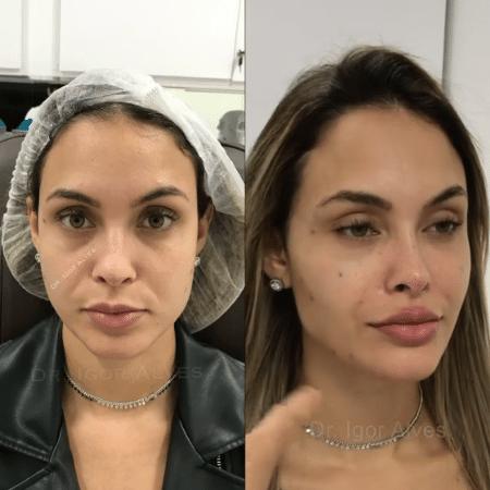 Ex-BBB Sarah faz procedimento estético no rosto - Reprodução / Instagram