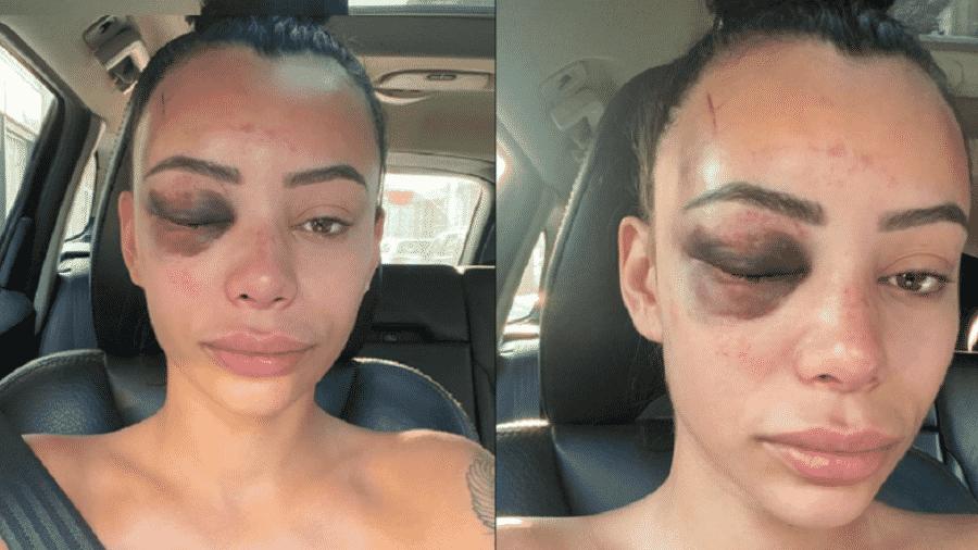 """Yasmine Cécilia disse que resolveu se abrir publicamente sobre o incidente """"para espalhar a consciência sobre o abuso"""" contra mulheres - Reprodução/Instagram"""