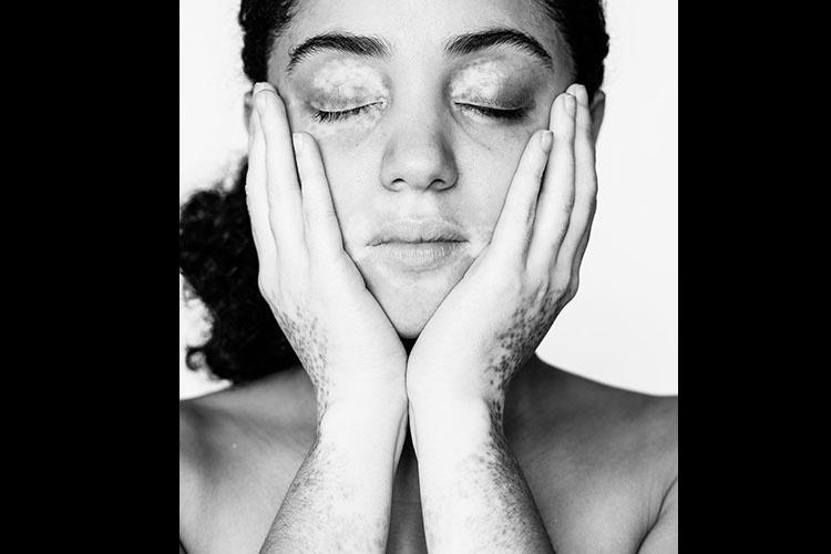modelos com vitiligo