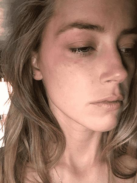 A atriz Amber Heard alega que foi agredida por Johnny Depp - Reprodução - Reprodução