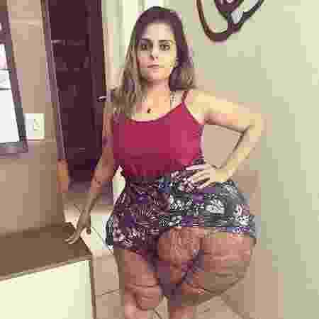 Karina Rodini - Reprodução Instagram/@superandoaneurofibromatose - Reprodução Instagram/@superandoaneurofibromatose