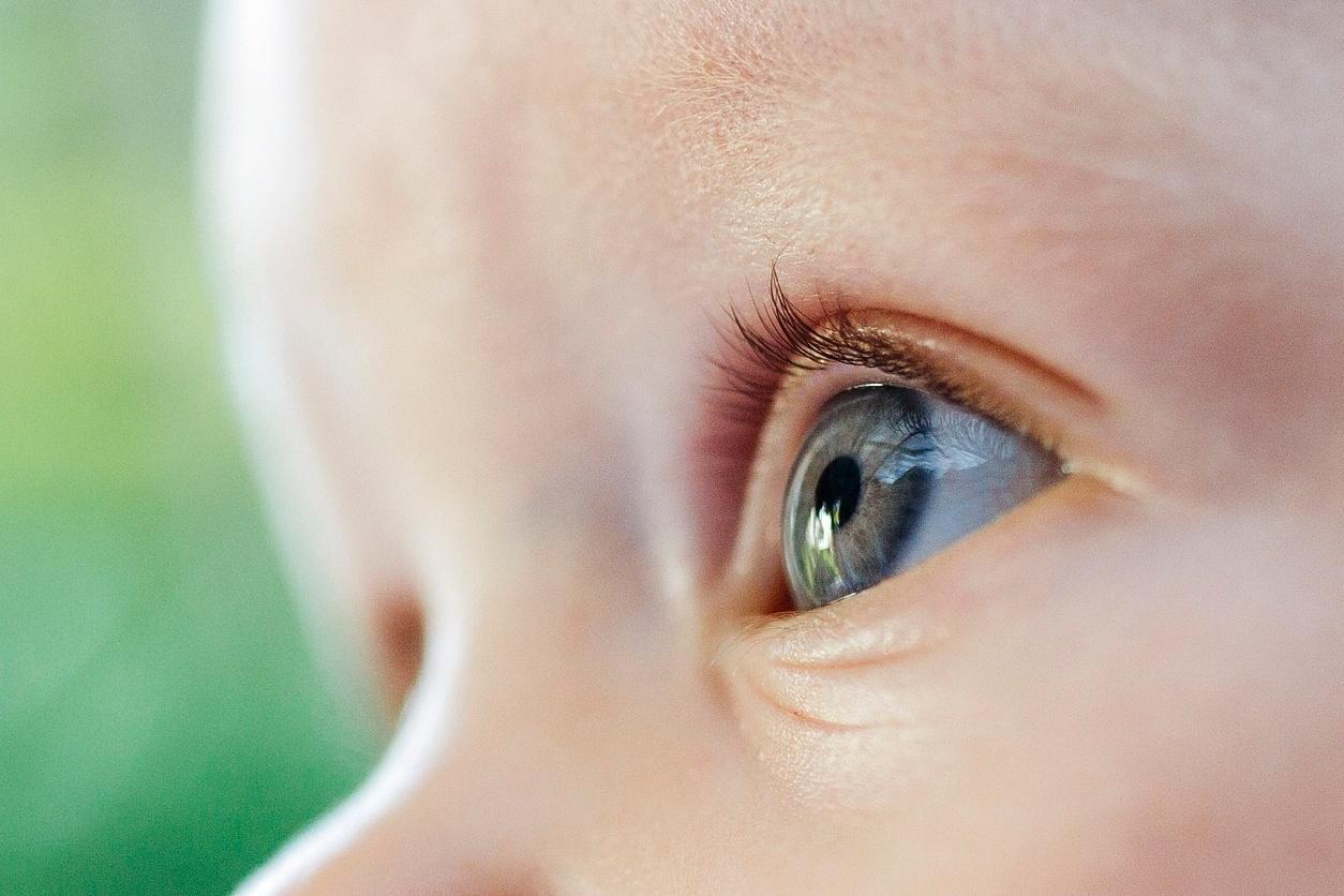 f7d117706 Vírus é esperança para tratamento de retinoblastoma, tipo de câncer no olho  - 24/01/2019 - UOL VivaBem