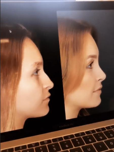 Carla Diaz mostra antes e depois de cirurgia no nariz - Reprodução/Instagram