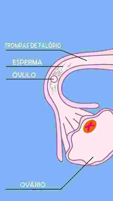 O encontro entre os espermatozoides e o óvulo na trompa uterina, também chamada de trompas de Falópio - iStock